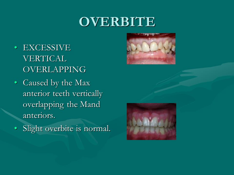 OVERBITE EXCESSIVE VERTICAL OVERLAPPING