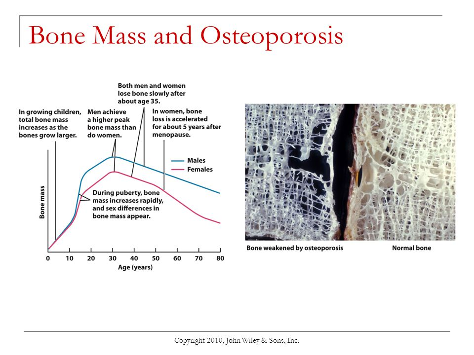 Bone Mass and Osteoporosis
