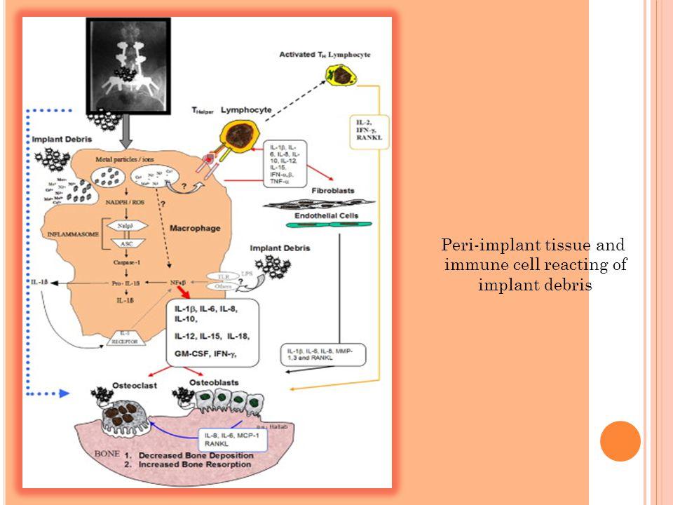 Peri-implant tissue and immune cell reacting of implant debris