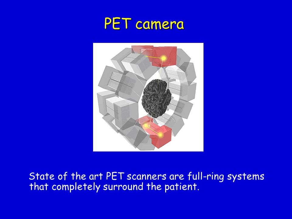 PET camera State of the art PET scanners are full-ring systems that completely surround the patient.