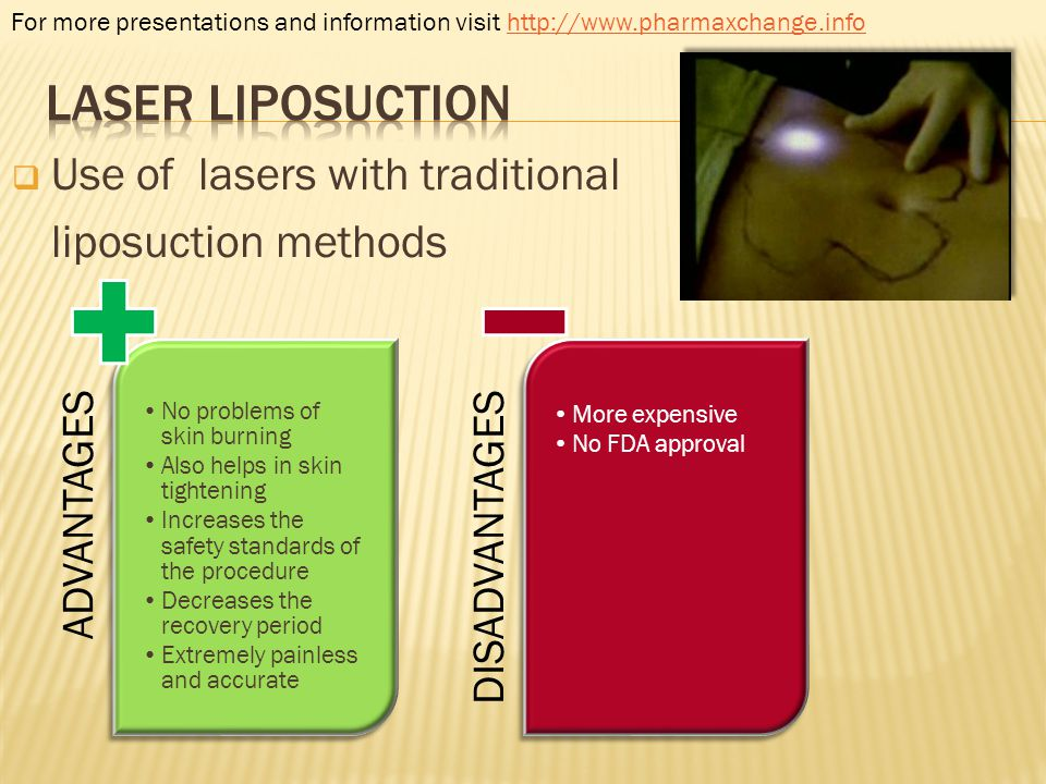 Laser liposuction Use of lasers with traditional liposuction methods