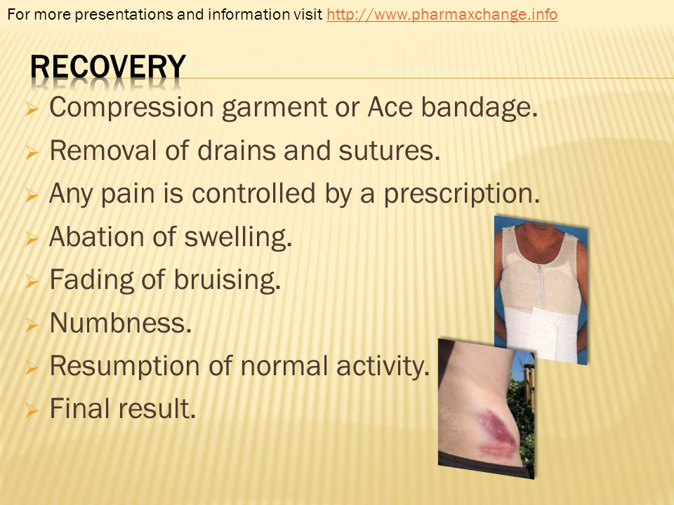 recovery Compression garment or Ace bandage.