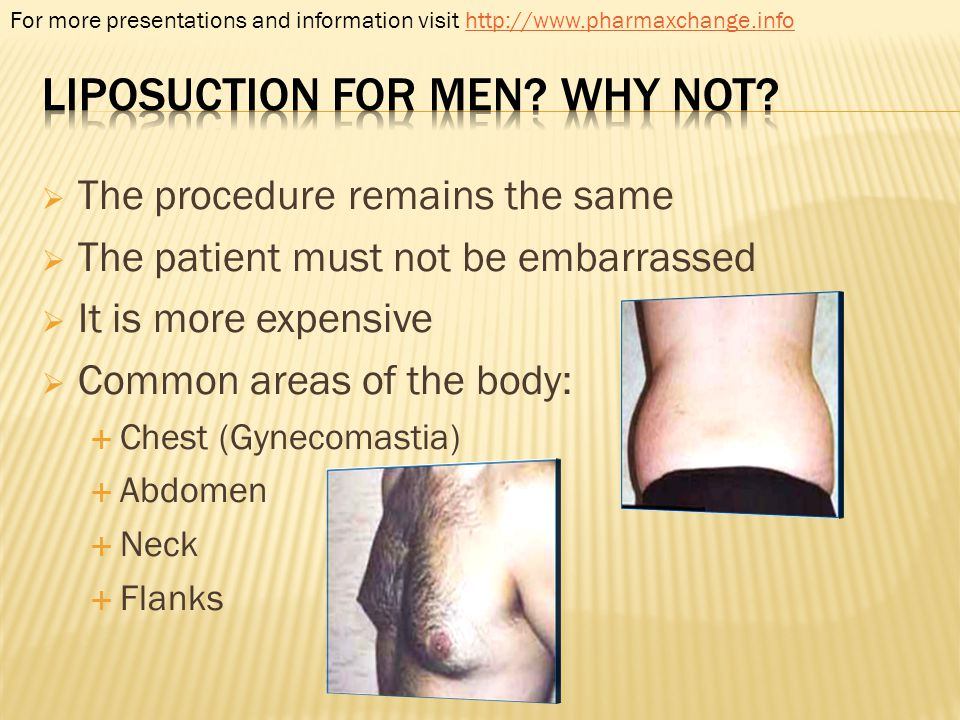 Liposuction for men Why not
