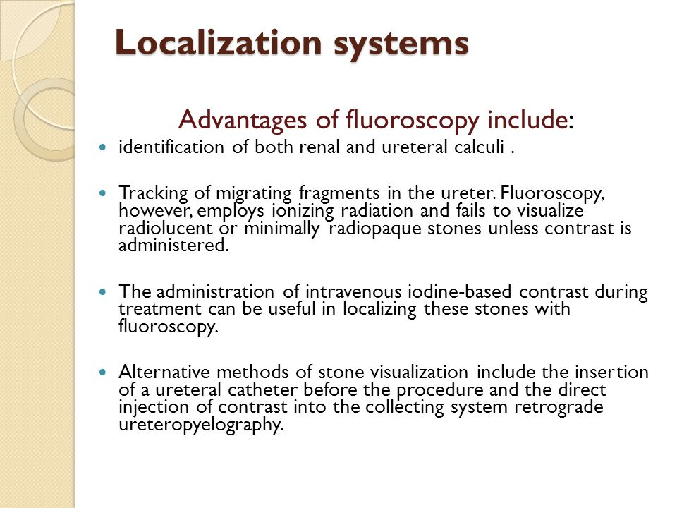 Localization systems Advantages of fluoroscopy include: