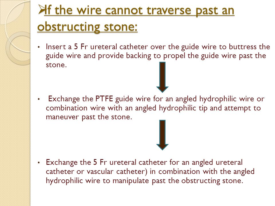 If the wire cannot traverse past an obstructing stone:
