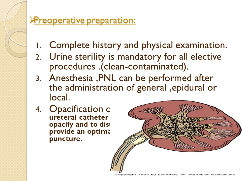 Preoperative preparation: