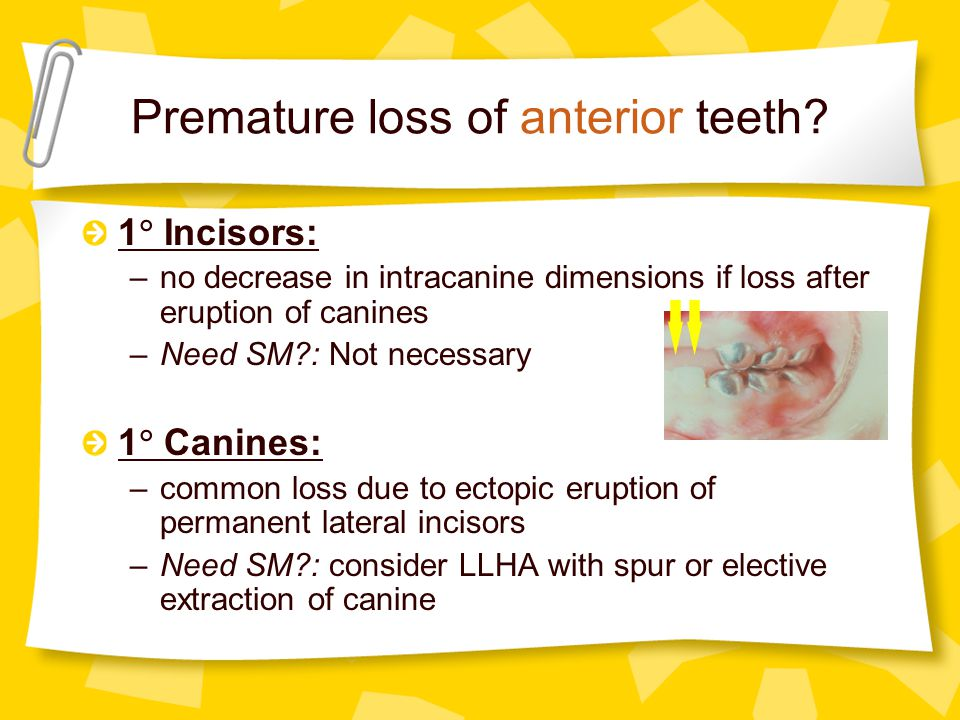 Premature loss of anterior teeth