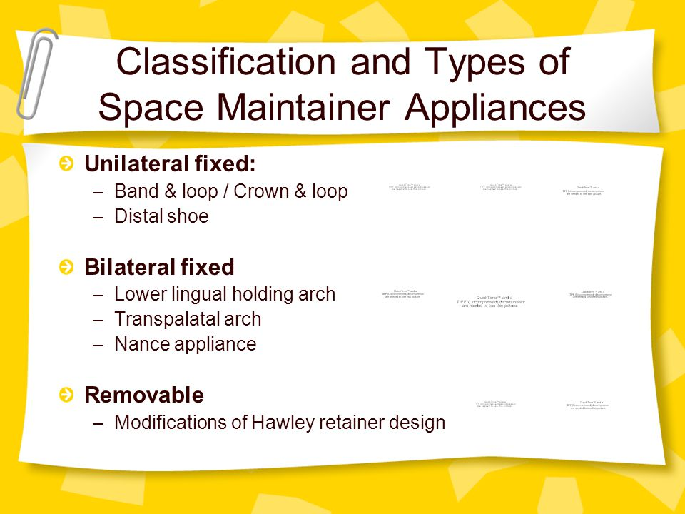 Classification and Types of Space Maintainer Appliances