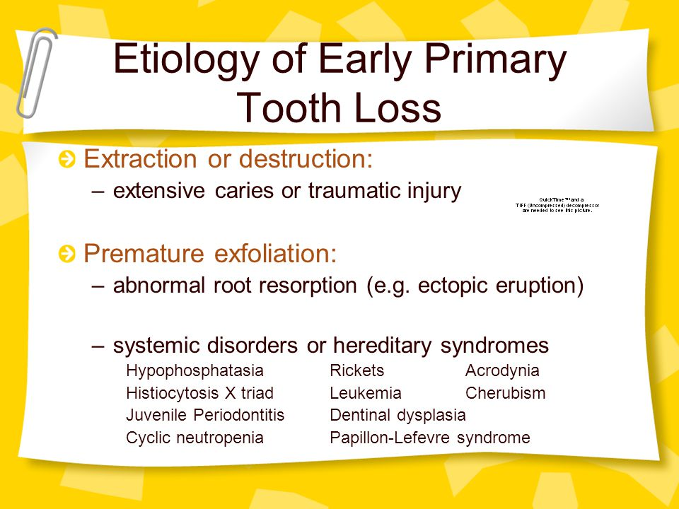 Etiology of Early Primary Tooth Loss