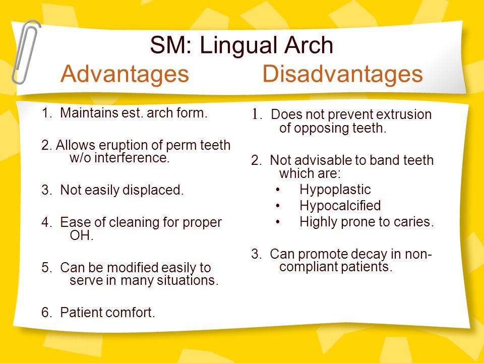 SM: Lingual Arch Advantages Disadvantages