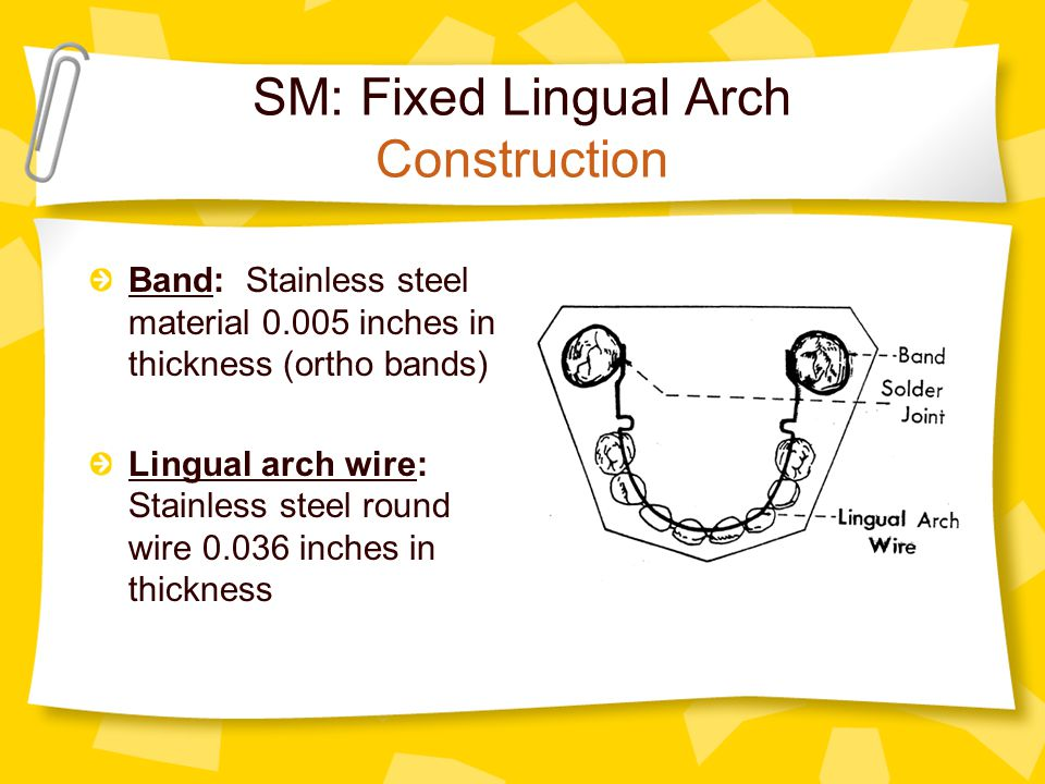 SM: Fixed Lingual Arch Construction