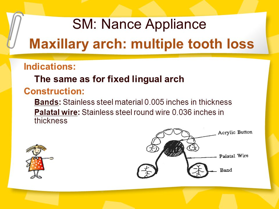 SM: Nance Appliance Maxillary arch: multiple tooth loss