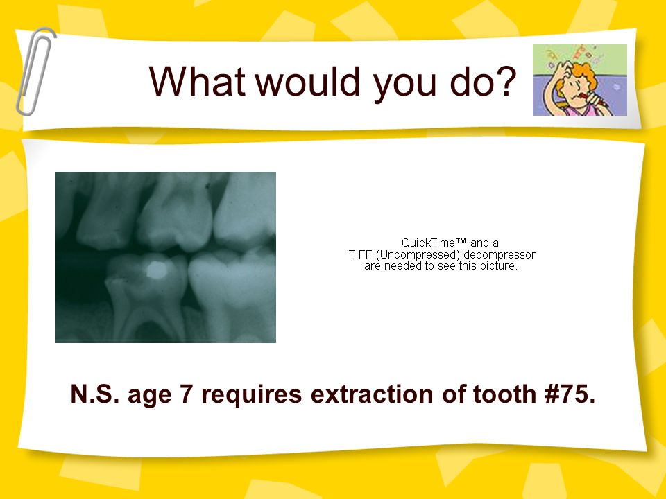 N.S. age 7 requires extraction of tooth #75.