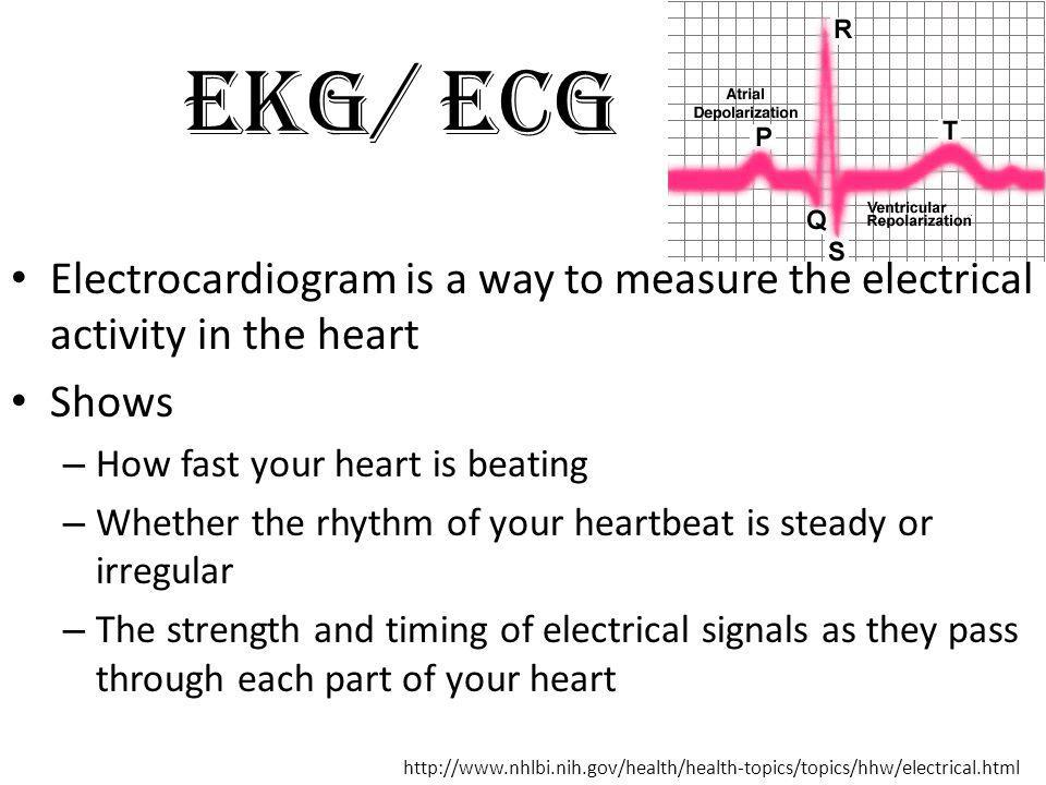 EKG/ ECG Electrocardiogram is a way to measure the electrical activity in the heart. Shows. How fast your heart is beating.