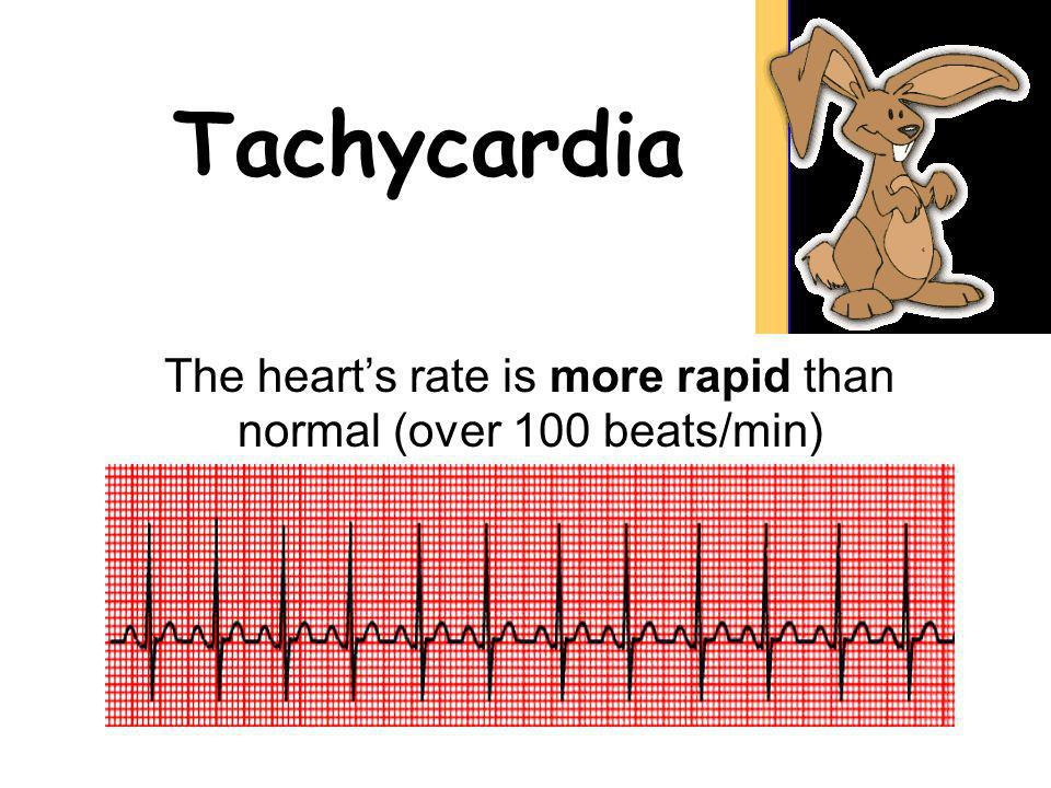 The heart's rate is more rapid than normal (over 100 beats/min)