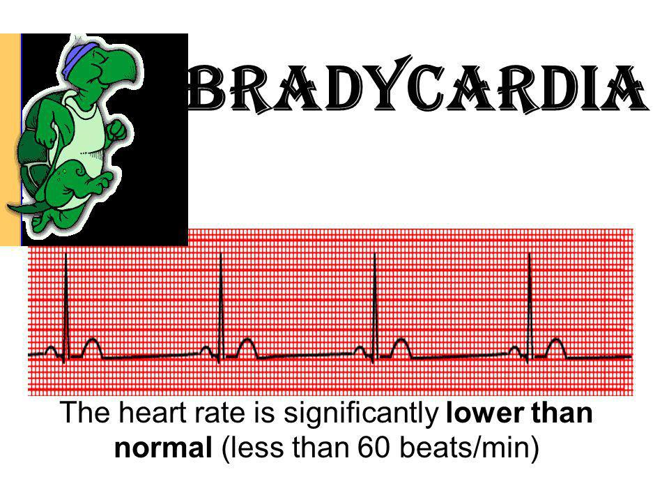 Bradycardia vi. Other lethal and nonlethal arrhythmias may follow AMI.