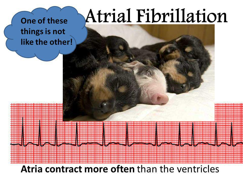 Atrial Fibrillation Atria contract more often than the ventricles