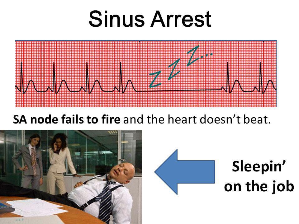 Sinus Arrest Sleepin' on the job
