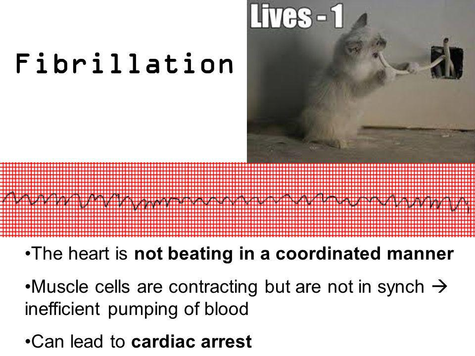 Fibrillation The heart is not beating in a coordinated manner