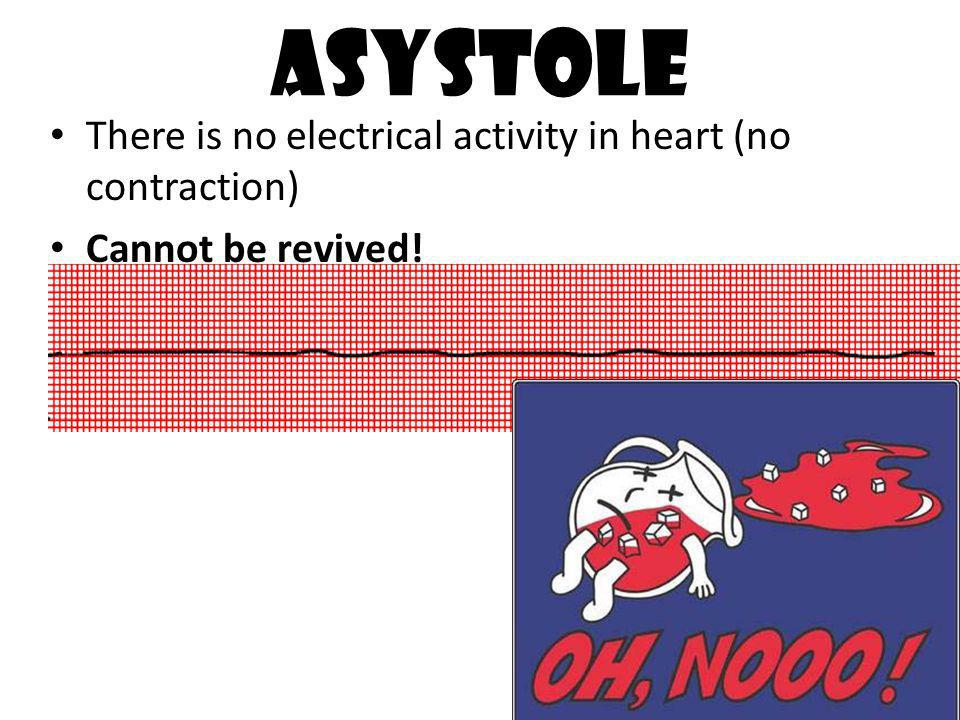 Asystole There is no electrical activity in heart (no contraction)