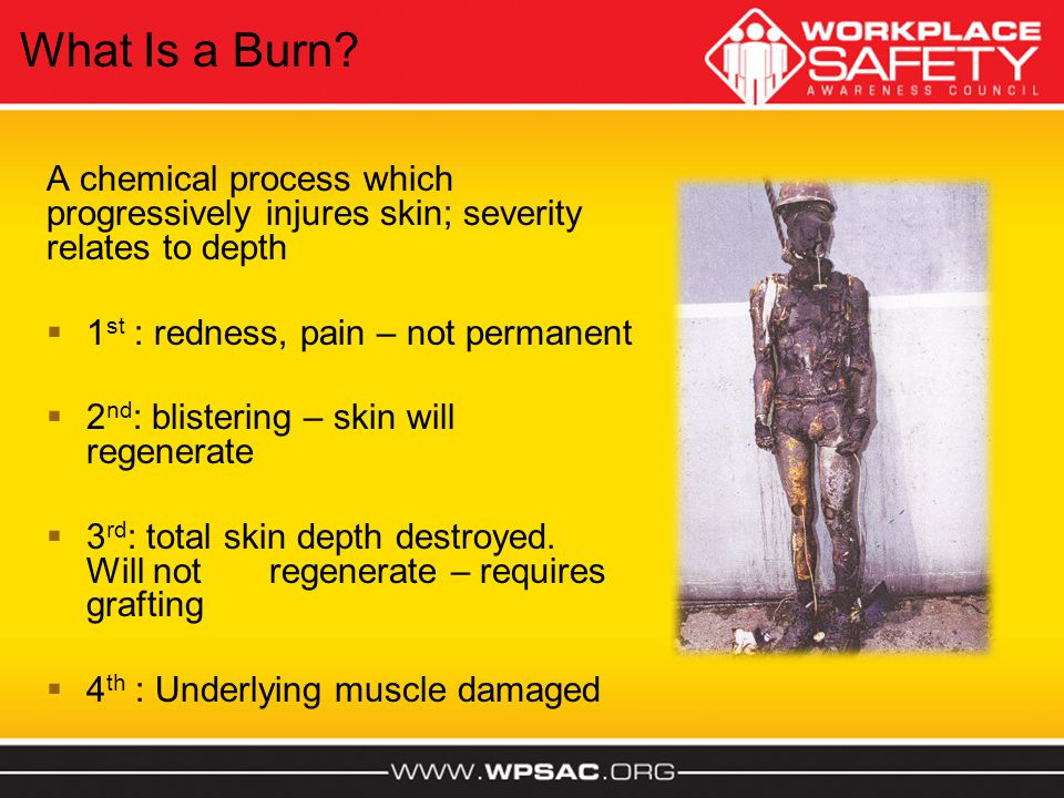 What Is a Burn A chemical process which progressively injures skin; severity relates to depth. 1st : redness, pain – not permanent.