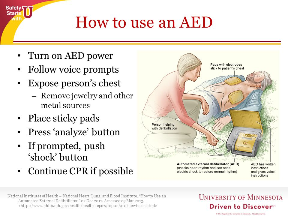 How to use an AED Turn on AED power Follow voice prompts
