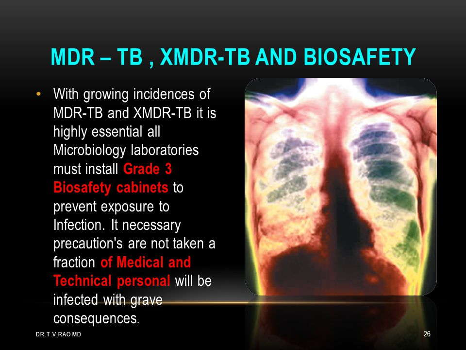 Mdr – Tb , xmdr-tb and biosafety