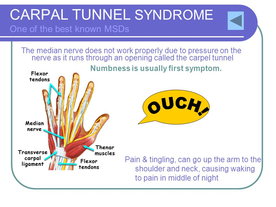 CARPAL TUNNEL SYNDROME One of the best known MSDs