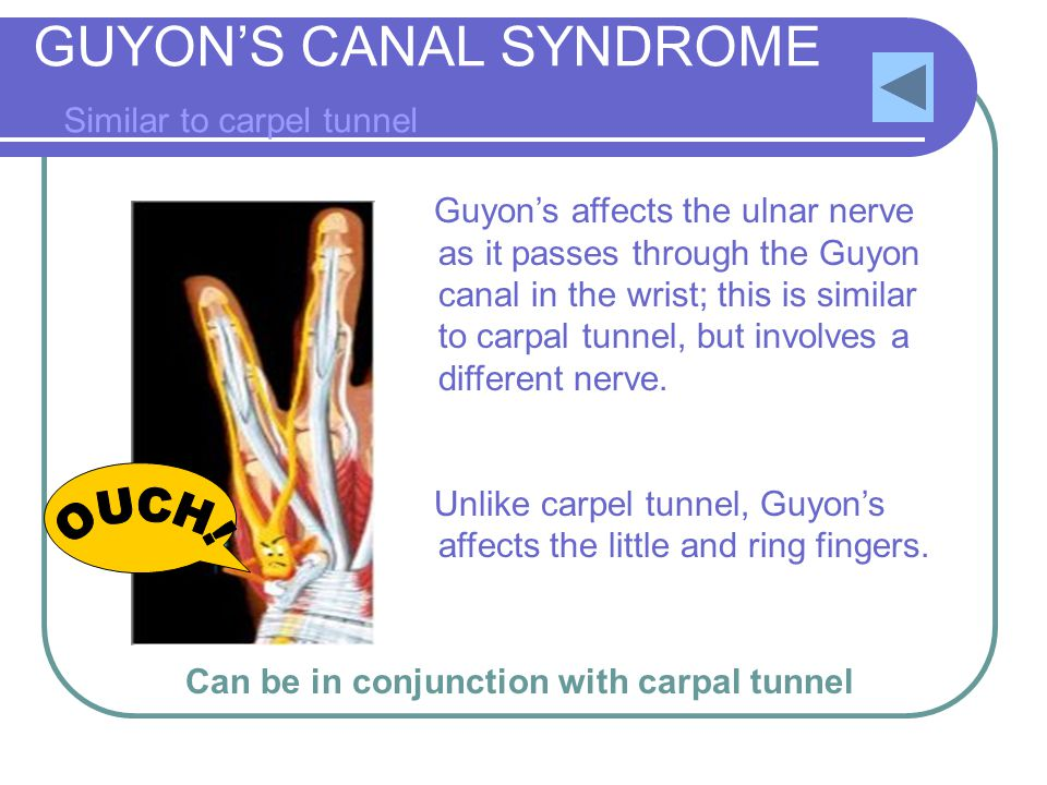GUYON'S CANAL SYNDROME Similar to carpel tunnel