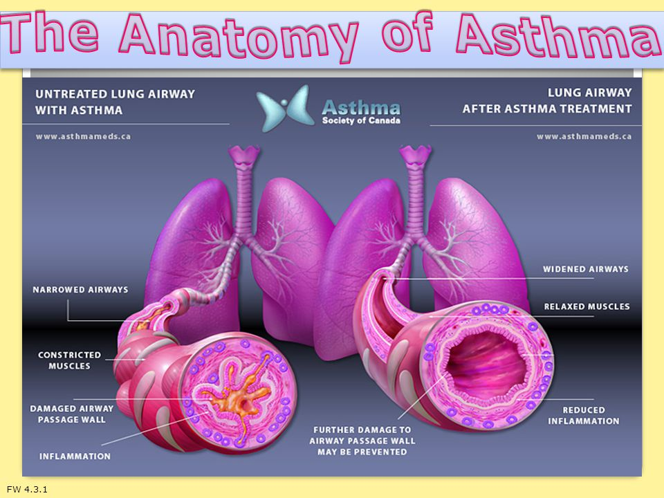 The Anatomy of Asthma FW 4.3.1