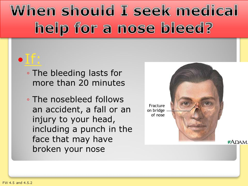 When should I seek medical help for a nose bleed
