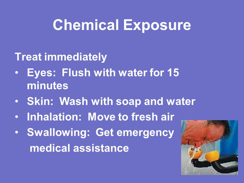 Chemical Exposure Treat immediately