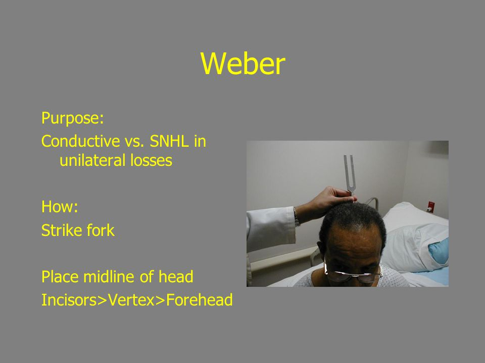 Weber Purpose: Conductive vs. SNHL in unilateral losses How: