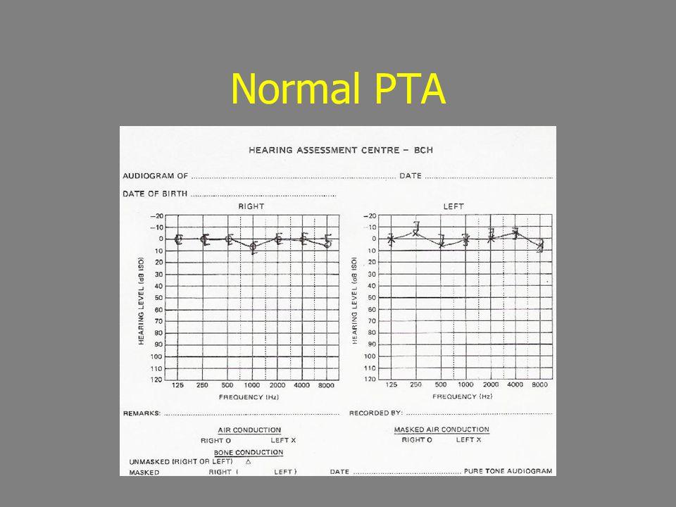 Normal PTA
