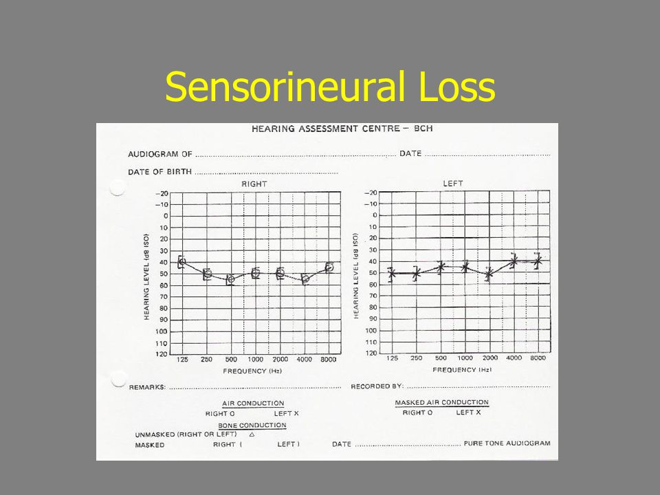 Sensorineural Loss
