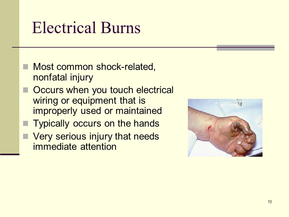 Electrical Burns Most common shock-related, nonfatal injury