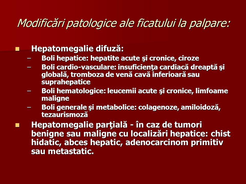 Modificări patologice ale ficatului la palpare: