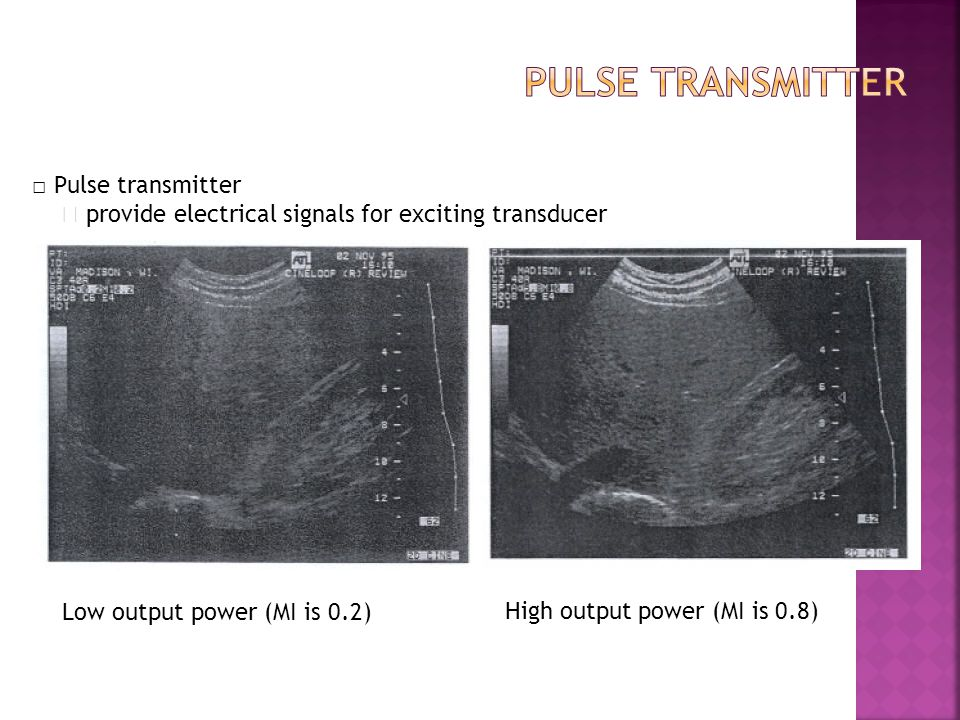 Pulse transmitter □ Pulse transmitter