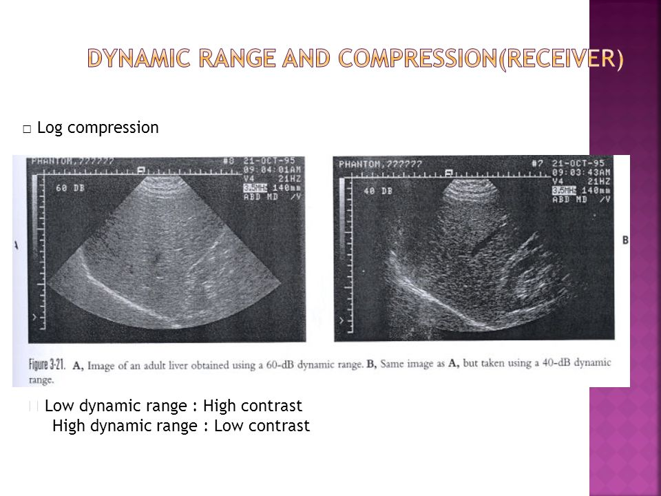 Dynamic range and compression(Receiver)