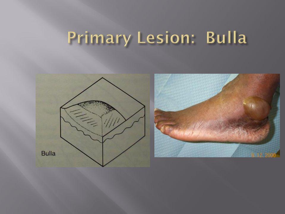 Primary Lesion: Bulla