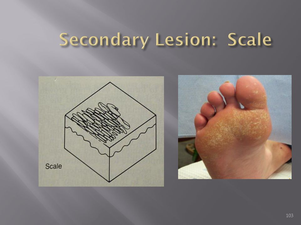 Secondary Lesion: Scale