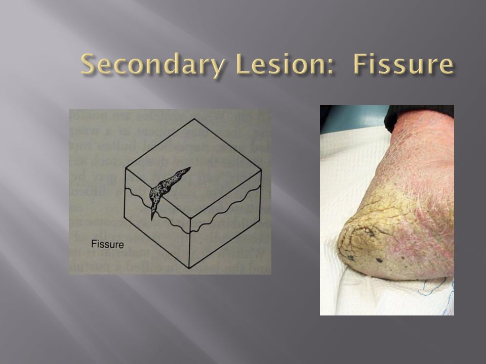 Secondary Lesion: Fissure