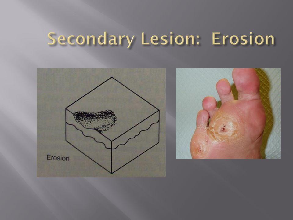 Secondary Lesion: Erosion