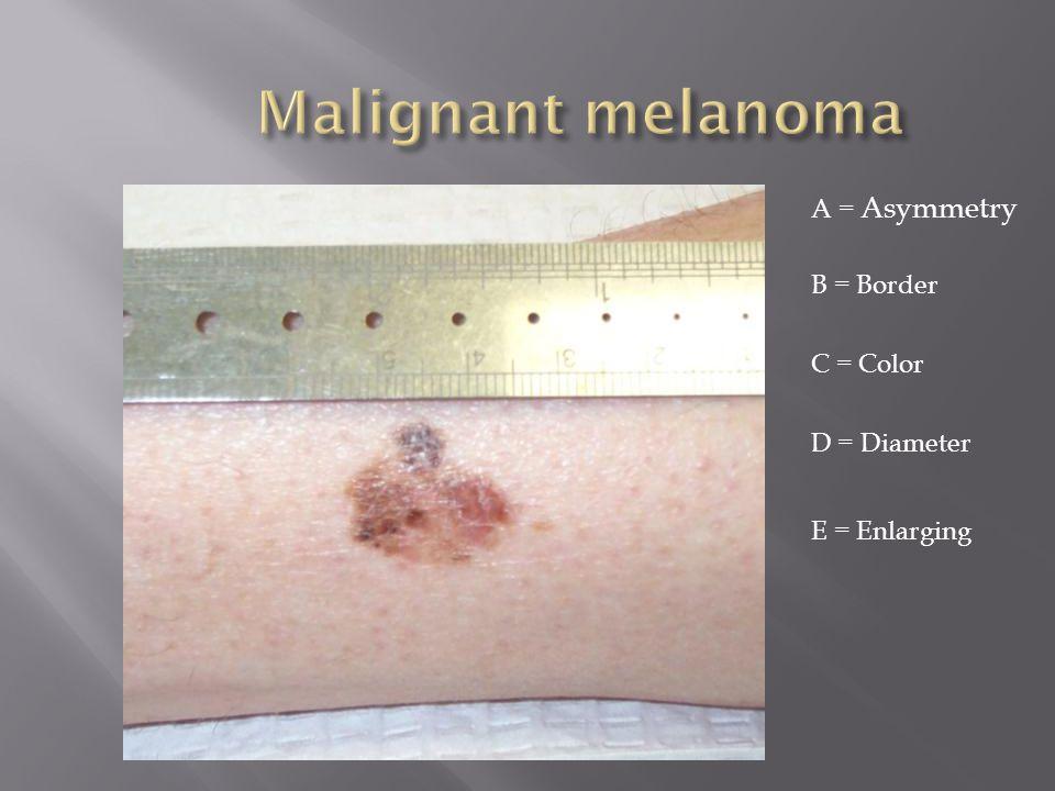 Malignant melanoma A = Asymmetry B = Border C = Color D = Diameter