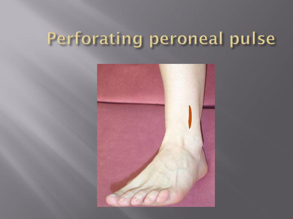 Perforating peroneal pulse