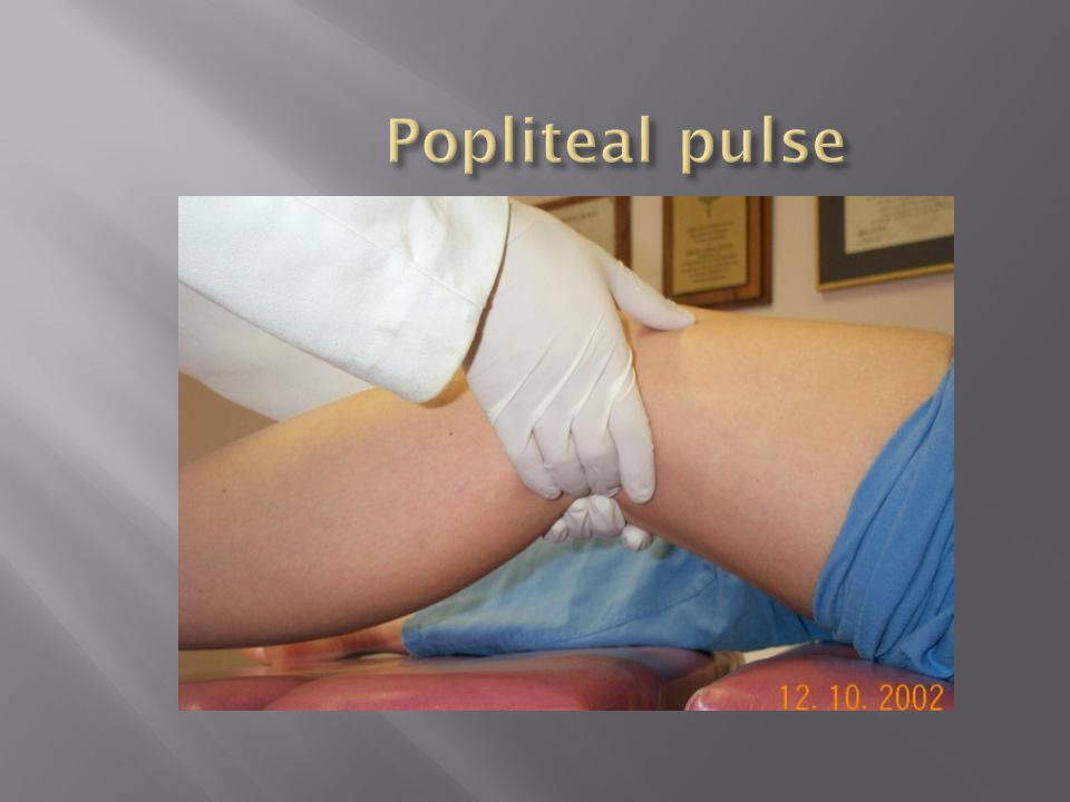 Popliteal pulse