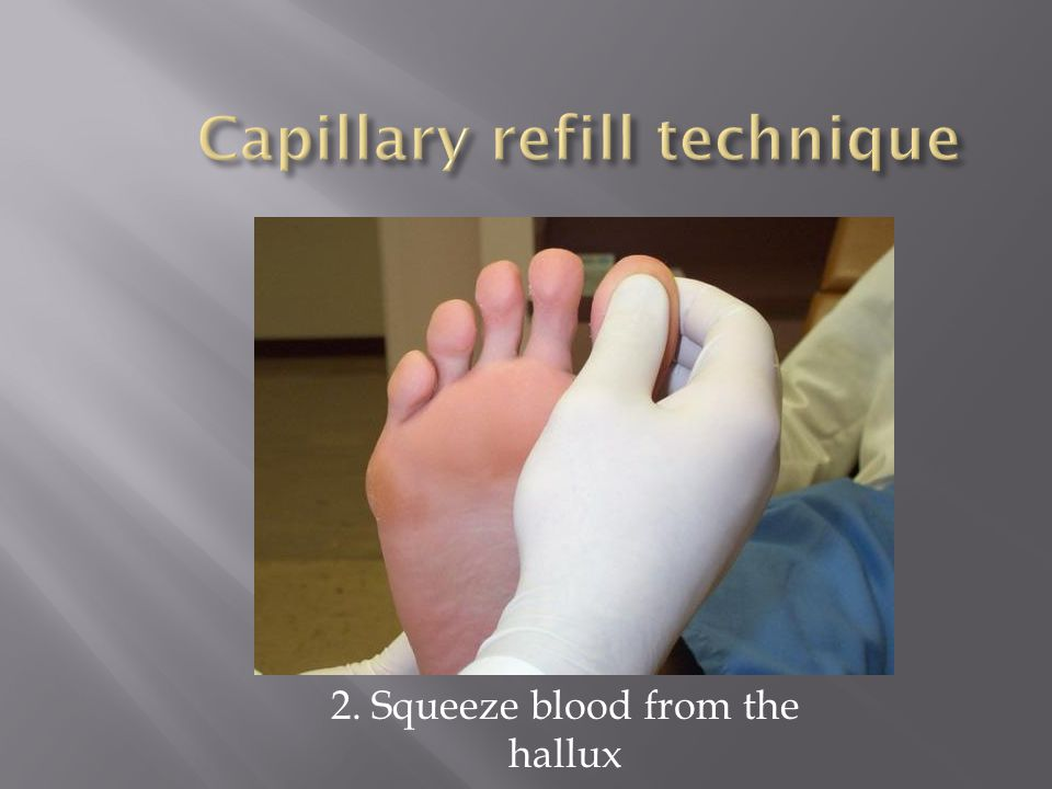 Capillary refill technique