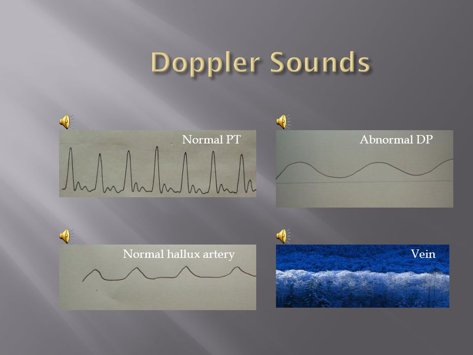 Doppler Sounds Normal PT Abnormal DP Normal hallux artery Vein