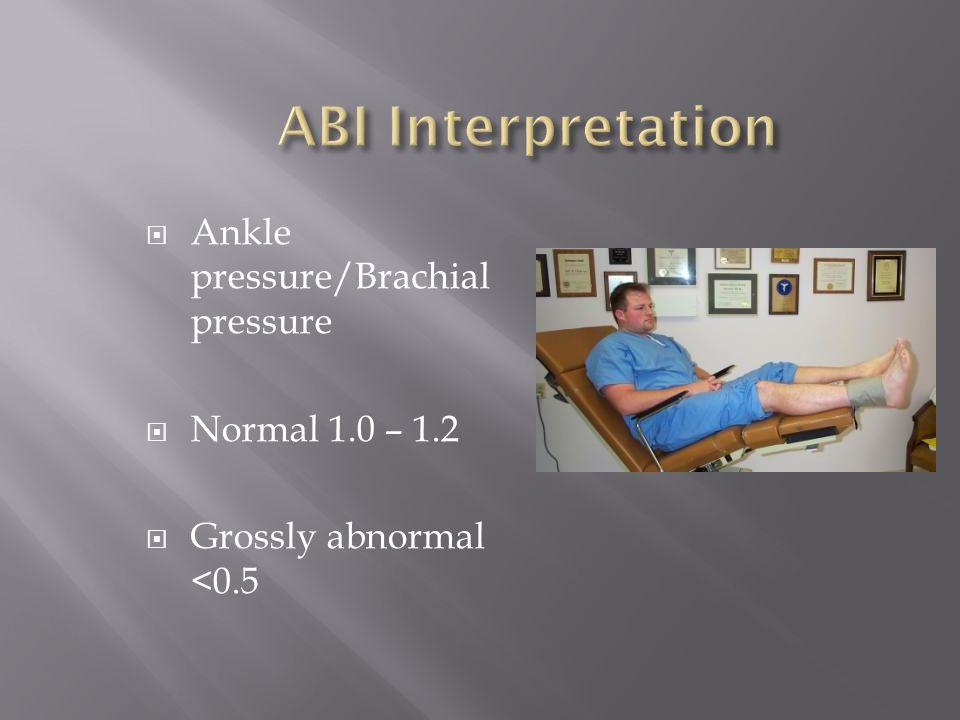 ABI Interpretation Ankle pressure/Brachial pressure Normal 1.0 – 1.2