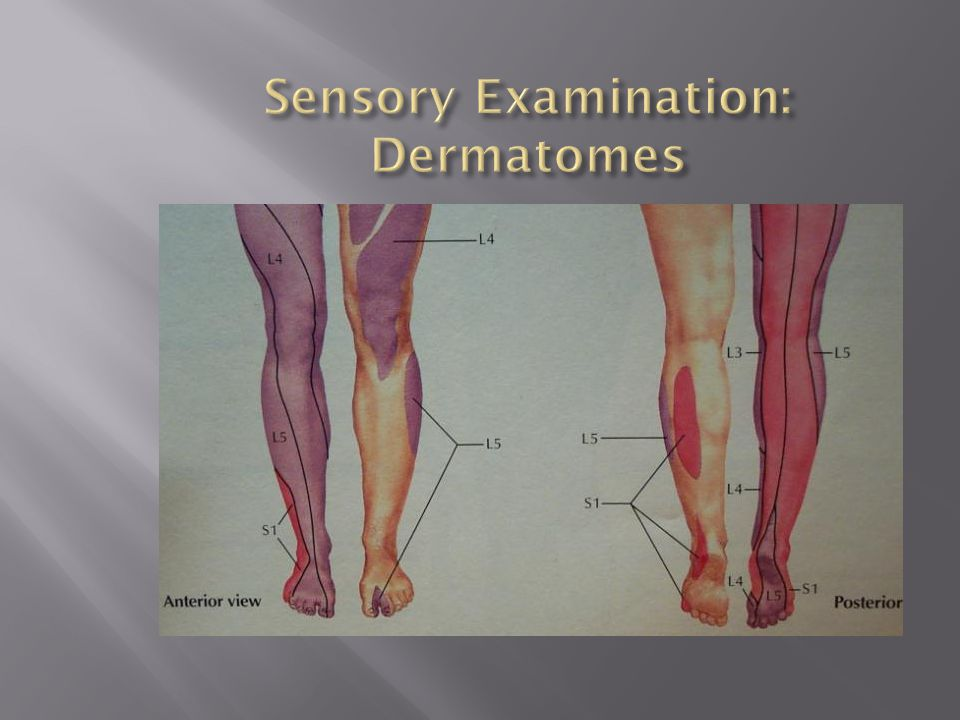Sensory Examination: Dermatomes